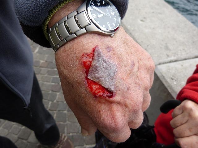 ruka, která má viditelné zranění